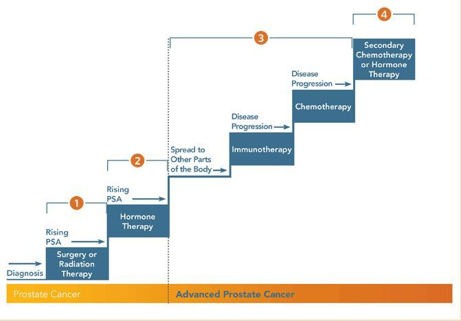 Prostate Cancer Stages and Treatment (provenge.com)