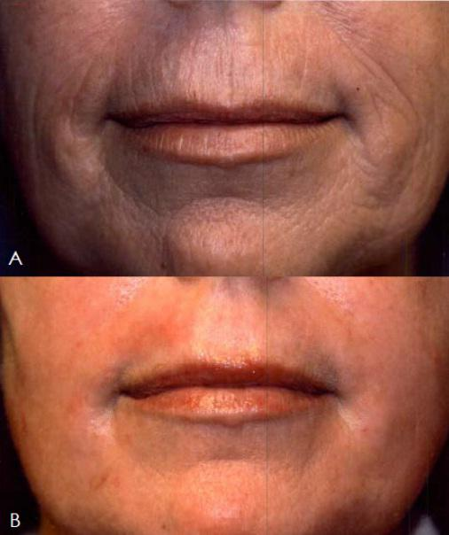 The effects of J-Plasma skin treatment on a 61 year old female.