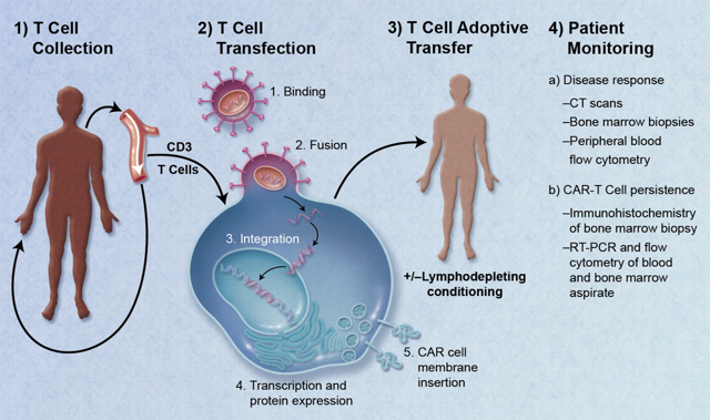 Car t cell cancer commons