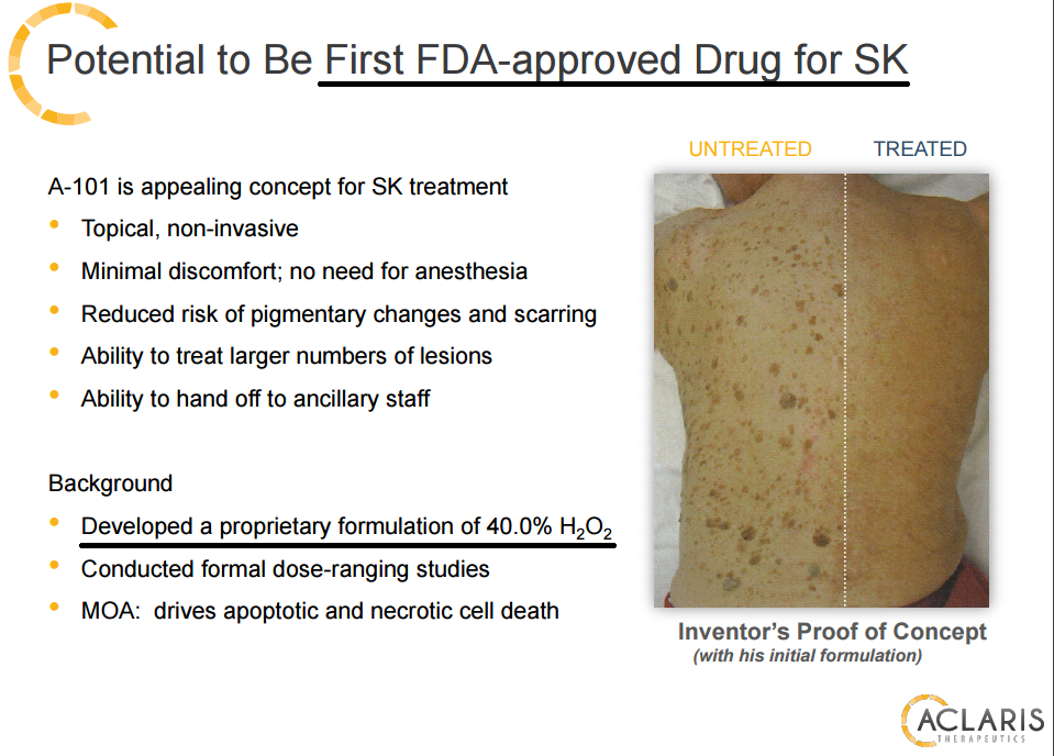 Is This A Joke Aclaris Therapeutics Lead Proprietary Drug Is H2o2