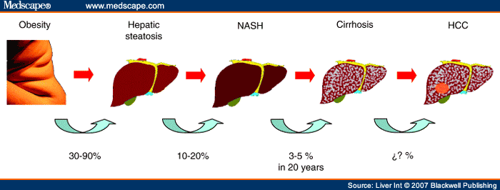 Non Alcoholic Fatty Liver Disease Natural Treatment