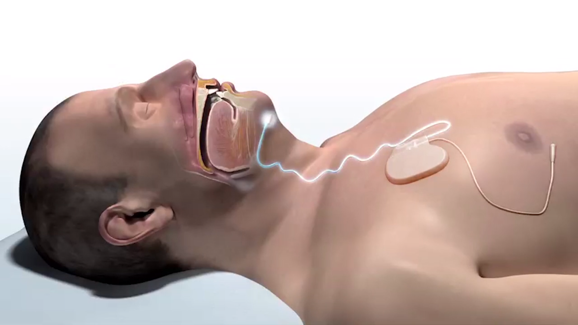 'No Mask, No Hose, No Noise': Inspire Is Disrupting Sleep Apnea Treatment