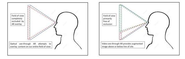 Comparison of AR Architectures