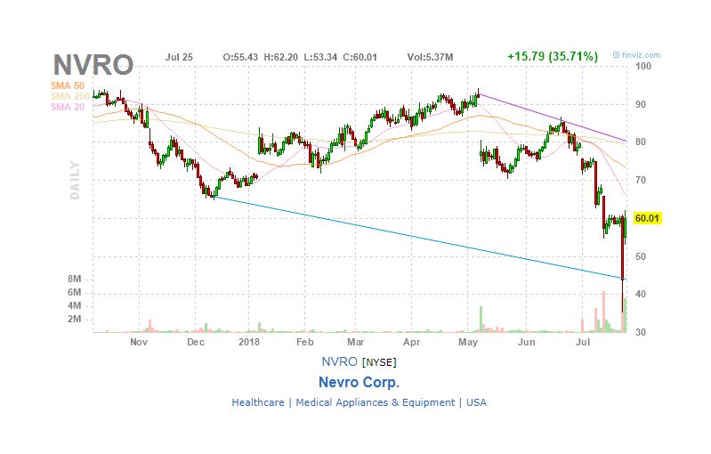 Investors Get Whiplashed At Nevro Nevro Nyse Nvro