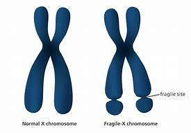 Image result for fragile x syndrome