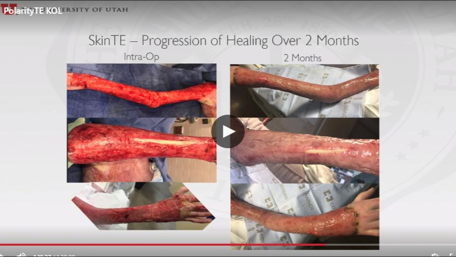 PolarityTE: Paradigm Shift Or Expensive Skin Graft? - PolarityTE
