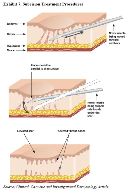 Subcision Diagram