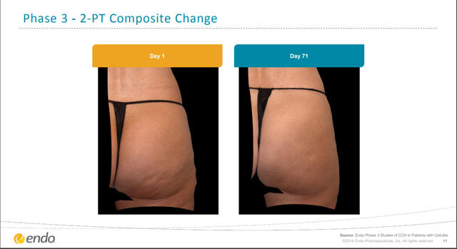 Endo 2-PT Composite Change in phase 3