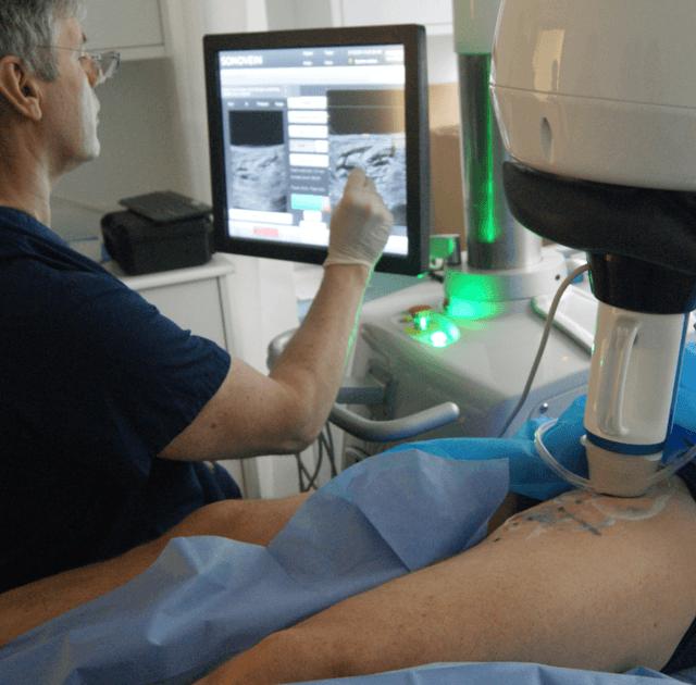 Knifeless Surgery: Theraclion Bets On Varicose Veins With HIFU (OTCMKTS:TCLIF)
