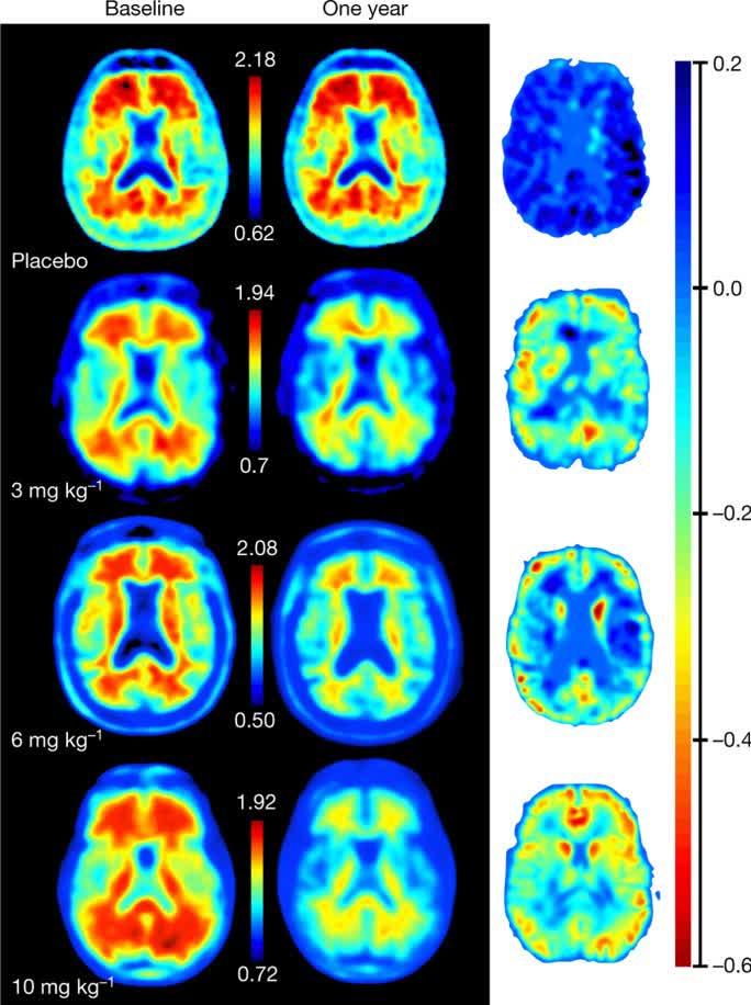 Addendum: The antibody aducanumab reduces Aβ plaques in Alzheimer